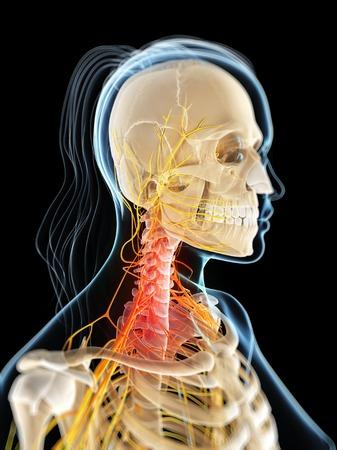 Neck pain,conceptual computer artwork