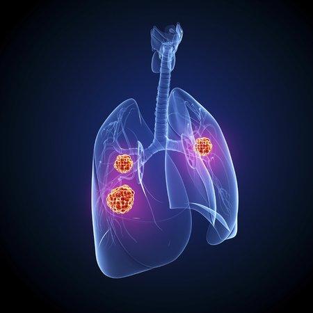 Lung cancer,artwork LANG_EVOIMAGES