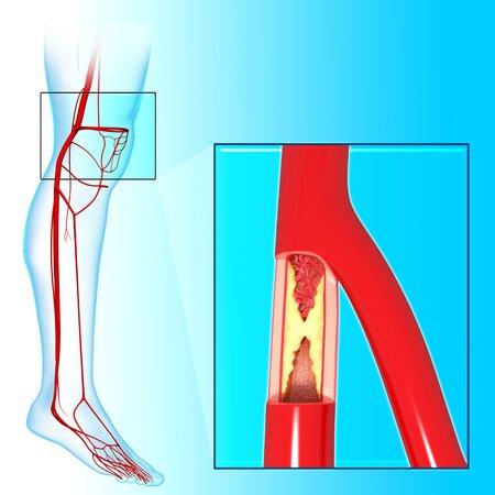 Atherosclerosis,artwork