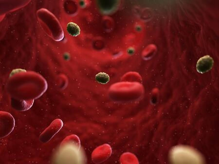 smallpox: Smallpox infection,artwork LANG_EVOIMAGES