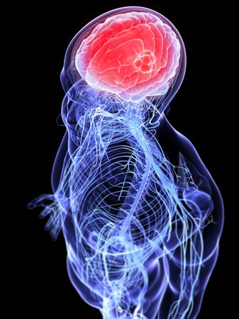 cerebrum: Headache,conceptual computer artwork