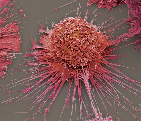 centimetres: Activated human macrophage,coloured scanning electron micrograph (SEM). Magnification: x2,700 when printed at 10 centimetres wide LANG_EVOIMAGES