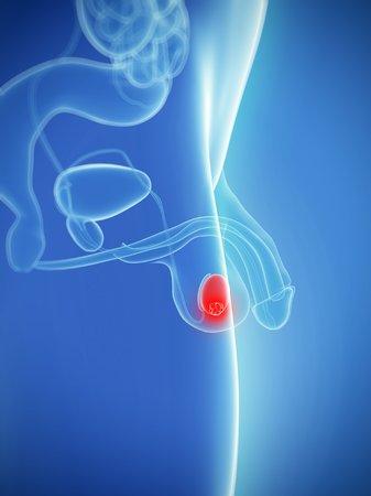 testes: Testicular cancer,computer artwork