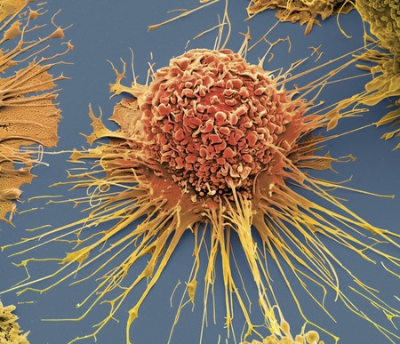 Activated human macrophage,coloured scanning electron micrograph (SEM). Magnification: x2,700 when printed at 10 centimetres wide LANG_EVOIMAGES