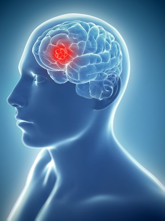 cerebrum: Brain cancer,computer artwork