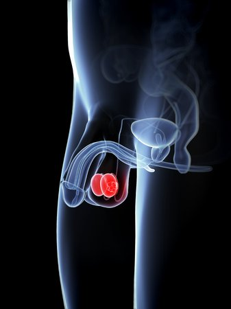 testicular: Testicular cancer,computer artwork