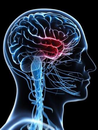 cerebrum: Headache,computer artwork LANG_EVOIMAGES