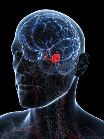 cerebrum: Brain aneurysm,computer artwork LANG_EVOIMAGES