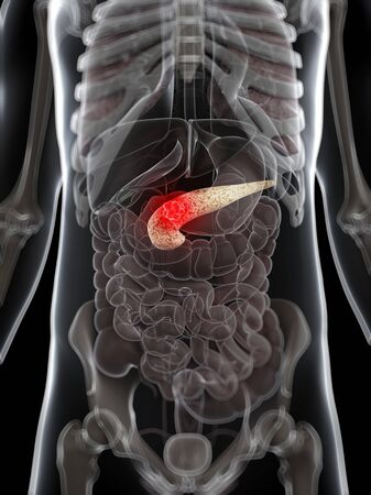pancreatic cancer: Pancreatic cancer,computer artwork