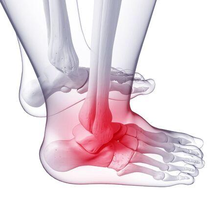 Foot pain,artwork LANG_EVOIMAGES