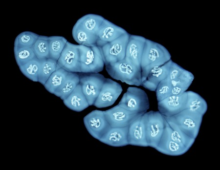 Giant chromosomes,light micrograph. Polytene chromosomes are over-sized chromosomes that have developed from standard chromosomes. They are commonly found in the saliva of the fruit fly Drosophila melanogaster. They are formed from repeated sequences of D