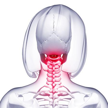 human likeness: Neck pain,computer artwork