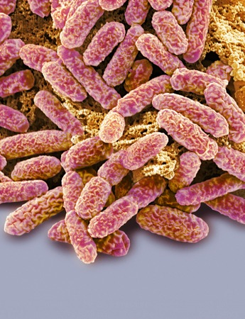 Escherichia coli bacteria,coloured scanning electron micrograph (SEM). Magnification: x10,000 when printed at 10 centimetres tall