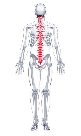 pelvis: Spine pain,computer artwork LANG_EVOIMAGES