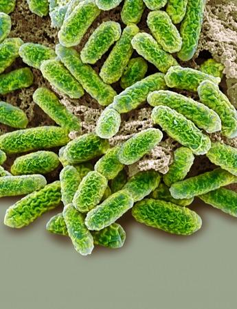 centimetres: Escherichia coli bacteria,coloured scanning electron micrograph (SEM). Magnification: x10,000 when printed at 10 centimetres tall