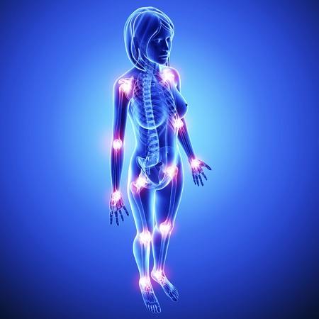 pelvis: Joint pain,artwork LANG_EVOIMAGES