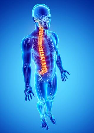 Spine pain,computer artwork LANG_EVOIMAGES