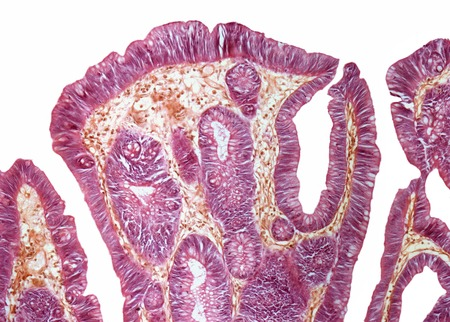 centimetres: Rectal papilloma,light micrograph. Magnification: x100 when printed at 10 centimetres wide LANG_EVOIMAGES