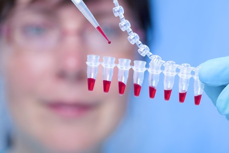 blood transfer: MODEL RELEASED. Haematology lab. Laboratory assistant using a pipette to transfer blood samples LANG_EVOIMAGES
