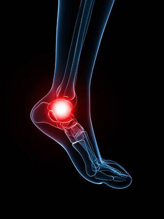Painful ankle,artwork LANG_EVOIMAGES