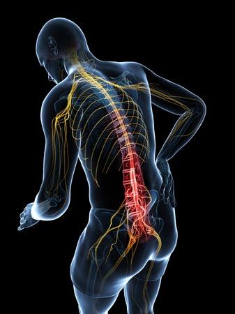 Back pain,artwork