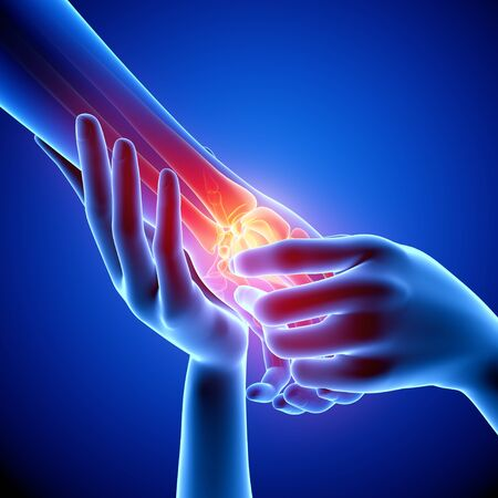sprained joint: Wrist pain,artwork LANG_EVOIMAGES