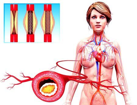female likeness: Angioplasty,artwork
