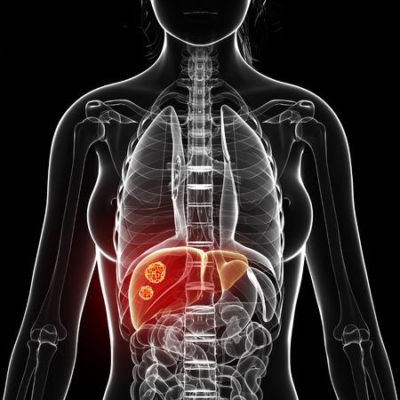 Liver cancer,artwork