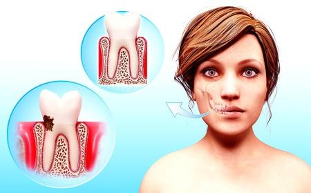 female likeness: Molar tooth,artwork