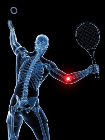 Tennis elbow,artwork LANG_EVOIMAGES