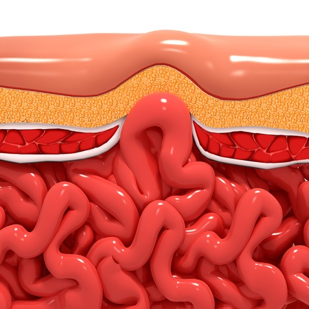 hernia: Ventral hernia,artwork