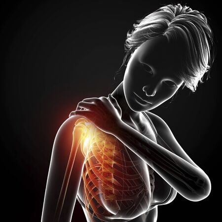 Shoulder pain,artwork