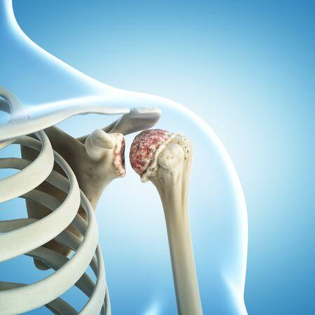 Arthritic shoulder, artwork