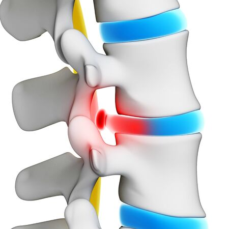 spinal disc herniation: Slipped disc, artwork