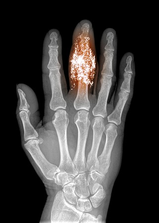 foreign bodies: Foreign body in finger, x-ray