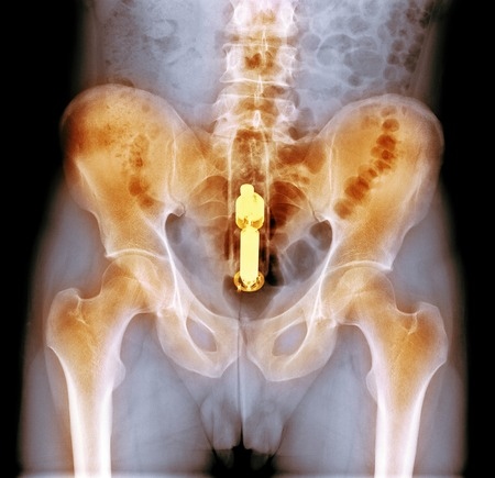 rectum: Foreign object in rectum, x-ray