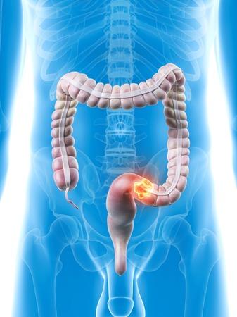 Human large intestine, artwork LANG_EVOIMAGES