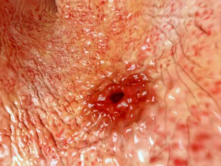 Artwork based on an endoscopic image of a stomach ulcer