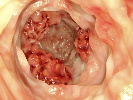 colonoscopy: Artwork based on an endoscopic image of colon cancer