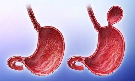 Human stomach with hernia, artwork