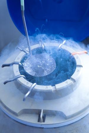 in vitro: Egg storage for ivf