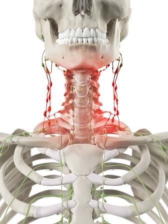 lymph: Inflamed lymph nodes, artwork