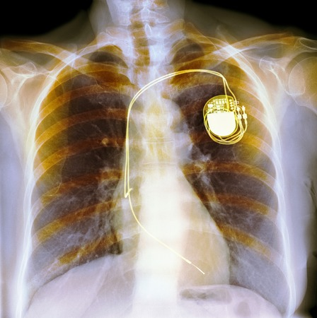 pacemaker: Dual chamber pacemaker, x-ray
