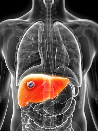 Human liver cancer, computer artwork LANG_EVOIMAGES