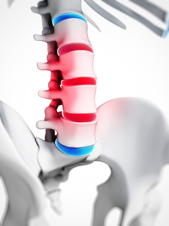 spinal disc herniation: Human spinal disc herniation (slipped disc), computer artwork