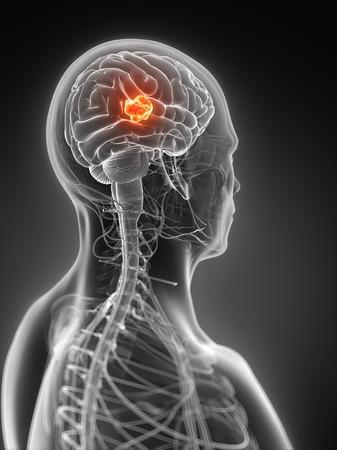 Human brain tumor, illustration LANG_EVOIMAGES