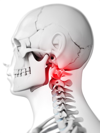 Human Neck Bones, Computer Artwork Stock Photo, Picture And Royalty ...