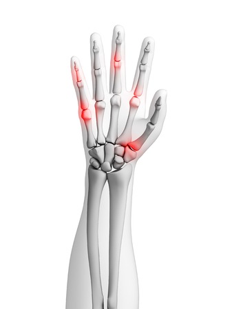 phalanges: Human hand joints showing arthritis, computer artwork