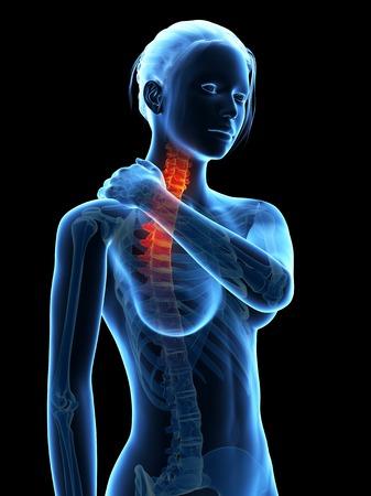 skeletal system: Human neck pain, illustration