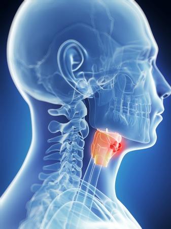 Human larynx tumor, computer artwork